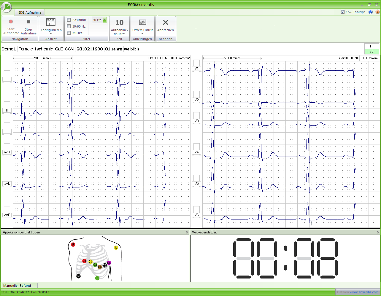 Enverdis Cardiologic Explorer ECG SIRE
