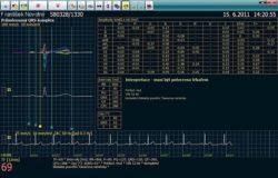 SEIVA Praktik electrocardiógrafo software SireMed Costa Rica