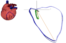 Enverdis Cardiologic Explorer SIREmed equipo medico Costa Rica
