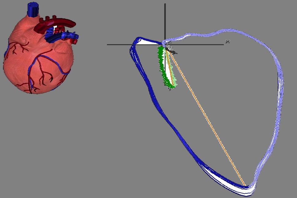 Enverdis Cardiologic Explorer SIRE