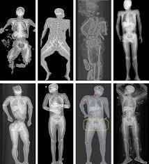 Lodox escáner rayos X cuerpo completo SIREmed Costa Rica